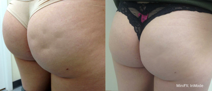 Contoura Cellulite Reduction