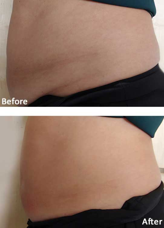 volve Fat Loss & Skin Tightening